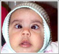 Very young child with very prominent congenital esotropia.
