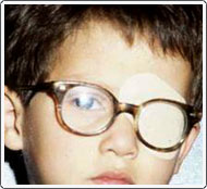 Patient is wearing a patch over the left eye to help force the use of the weaker right eye. The glasses are worn to correct the refractive error and improve vision while strengthening the right eye.