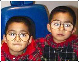 Twins with esotropia (crossed eyes) and hypermetropia. The glasses corrected the esotropia and they did not need surgery.