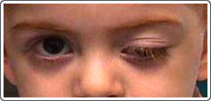 Child with left third nerve palsy after a virus. The left eyelid is droopy (ptotic), and the left eye is slightly down and out when the right eye looks straight ahead.