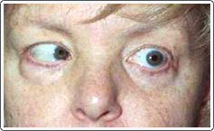 Patient with left sixth nerve palsy. Pre-operative photo shows inability of the left eye to turn out in left gaze.