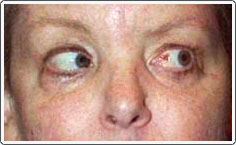 Post-operative photo shows recovered ability for the left eye to turn out in left gaze.