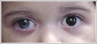 Young child with Peter's anomaly, right eye. Note the whitish opacity on the cornea, which later required a corneal transplant. Patient also had a cataract that required removal and is currently being treated for glaucoma related to Peter's anomaly. The patient wears a contact lens to try and improve the amblyopia caused from the cataract and corneal opacity. Patching of the good eye is being done.