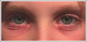 The patient has severe contact irritation of the lower lid skin secondary to ocular allergic conjunctivitis.