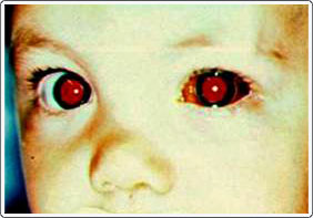 Child with H-flu and hemorrhagic conjunctivitis in the left eye. The bleeding usually clears up on its own in a couple of weeks.
