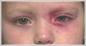 Child with chemical conjunctivitis caused by contact with nail polish. The eye and skin cleared up with no lasting side effects.