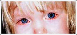 Child with bilateral blepharitis. Note the redness of the lid margins caused by irritation. There is tearing and some redness of the white part of the eye.