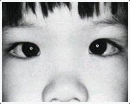 Note the light reflexes in the center of the pupils. They are centered and equal. However, the eyes look like they are crossing because of the very wide nasal bridge.