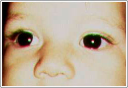 Child with exotropia and slight hypertropia of the right eye caused by a retinoblastoma tumor in that eye. Note the location of light reflexes on the pupils.