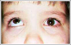 Child with a right hypertropia. The right eye is in the elevated position when the left eye looks straight ahead.
