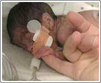 Very tiny premature baby at risk for retinopathy of prematurity. Patient was born weighing only 750 grams.